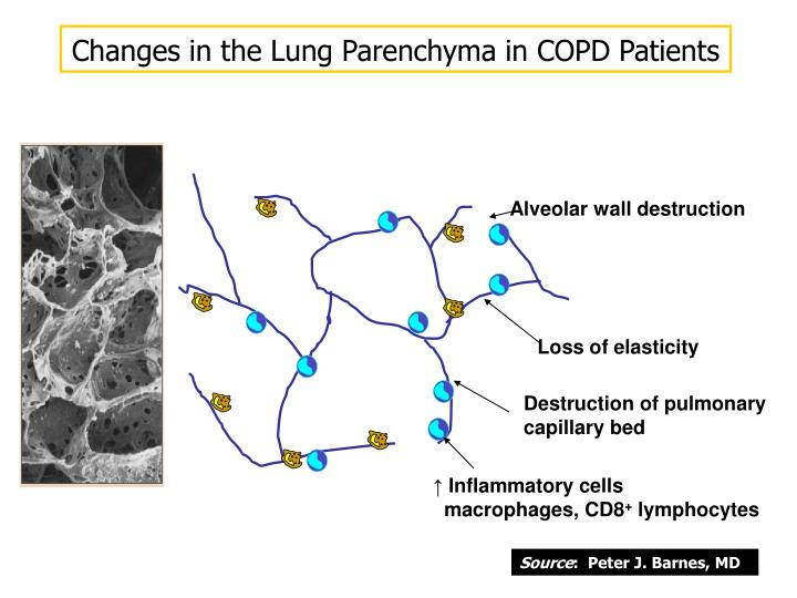Changes in the Lung Parenchyma in COPD Patients