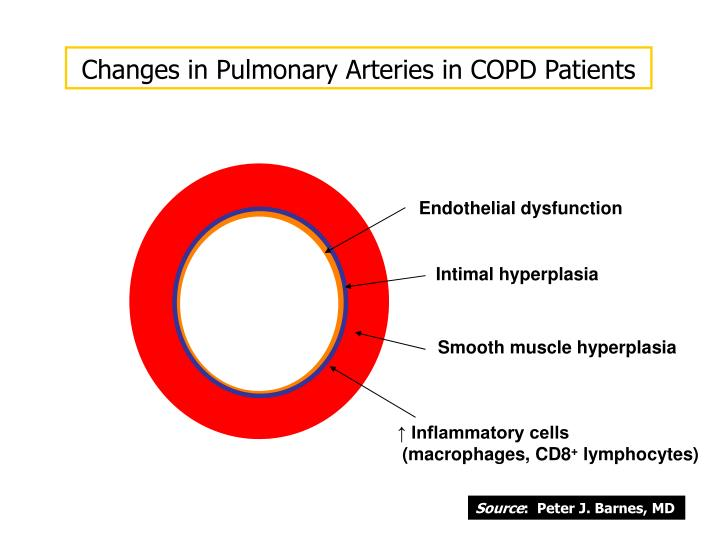 Changes in Pulmonary Arteries in COPD Patients