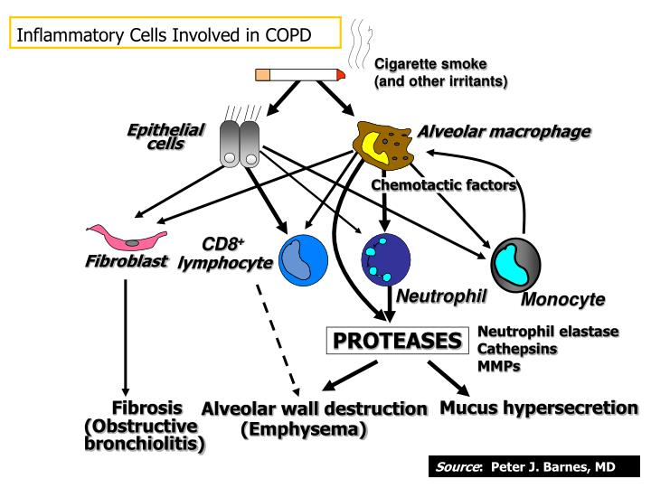 Inflammatory Cells Involved in COPD