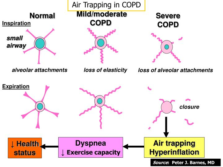 Air Trapping in COPD