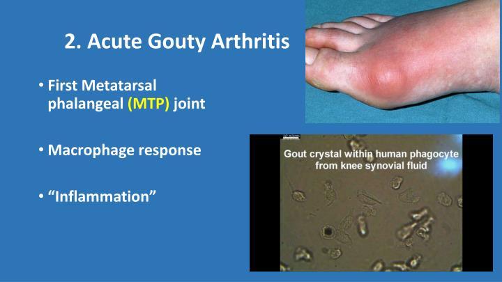 2. Acute Gouty Arthritis