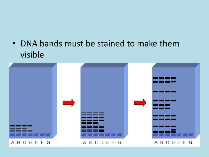 DNA bands must be stained to make them visible
