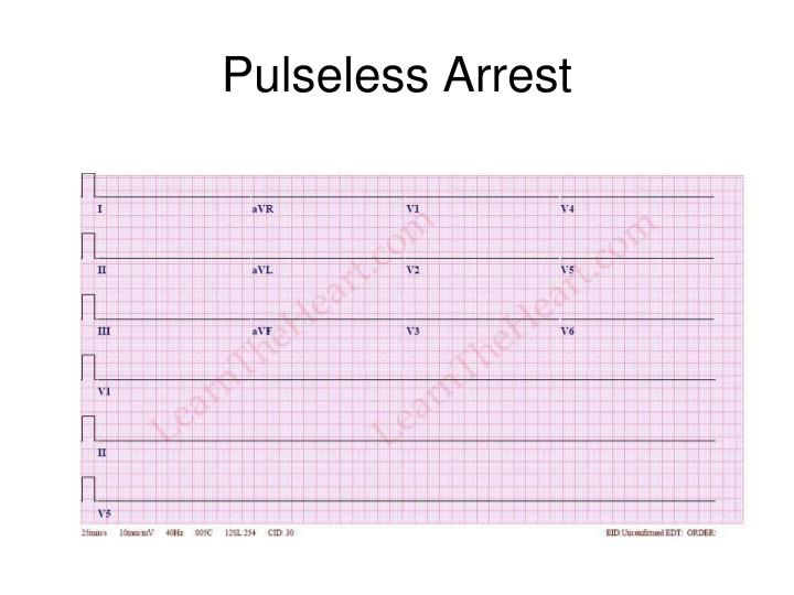 Pulseless Arrest