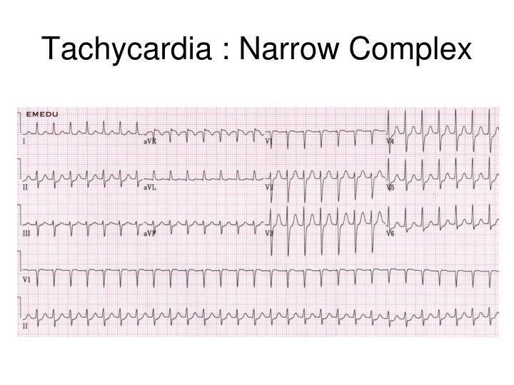 Tachycardia : Narrow Complex