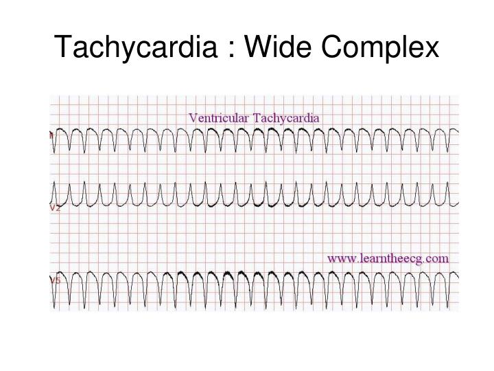 Tachycardia : Wide Complex