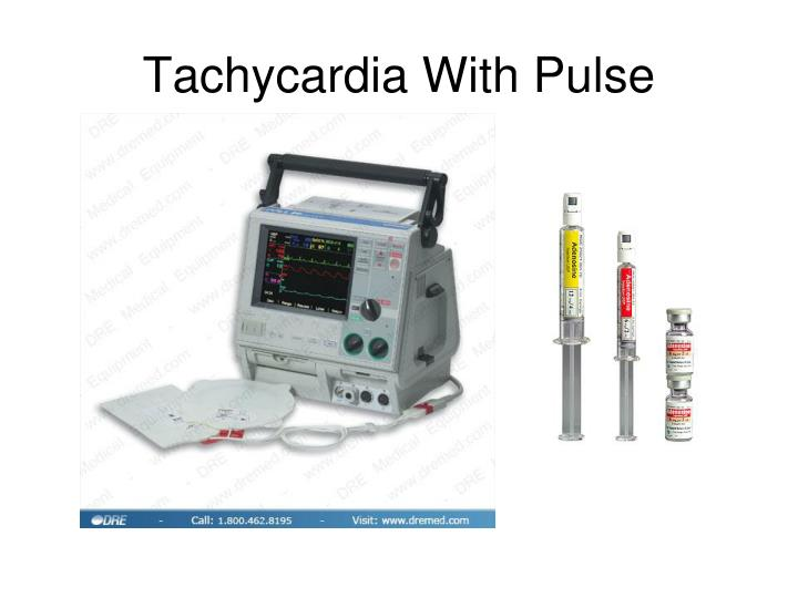 Tachycardia With Pulse
