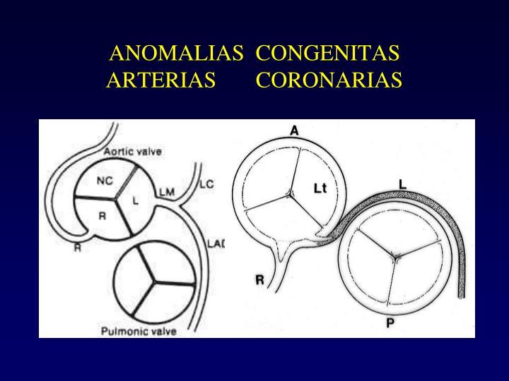 ANOMALIAS  CONGENITAS                ARTERIAS       CORONARIAS