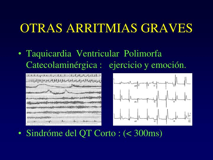 OTRAS ARRITMIAS GRAVES