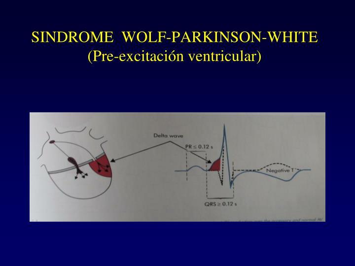 SINDROME  WOLF-PARKINSON-WHITE (Pre-excitación ventricular)