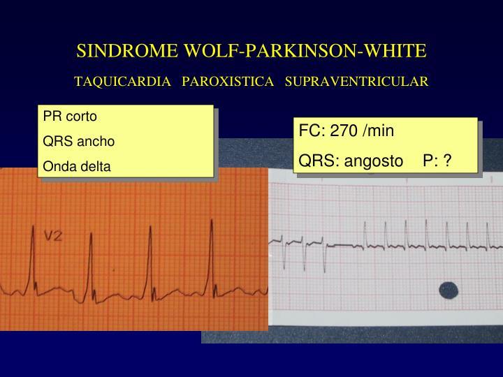 SINDROME WOLF-PARKINSON-WHITE
