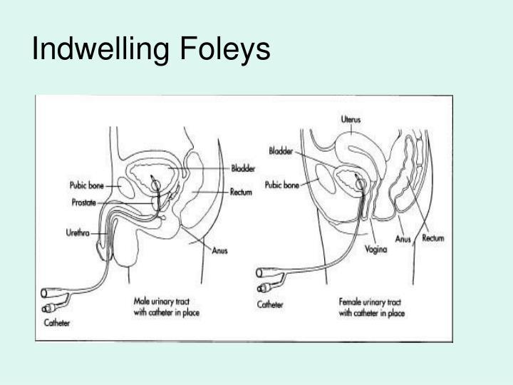 Indwelling Foleys
