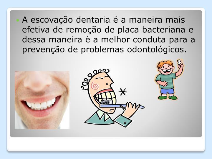A escovação dentaria é a maneira mais efetiva de remoção de placa bacteriana e dessa maneira è a melhor conduta para a prevenção de problemas odontológicos.