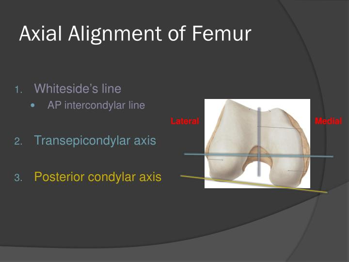 Axial Alignment of Femur