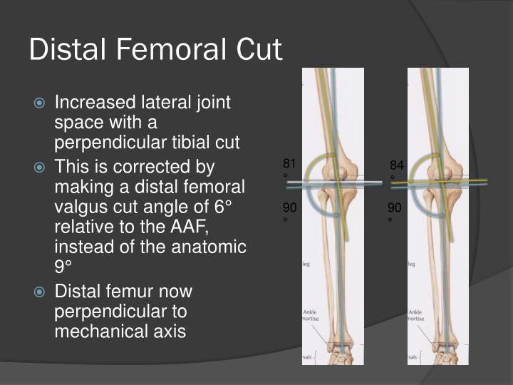 Distal Femoral Cut