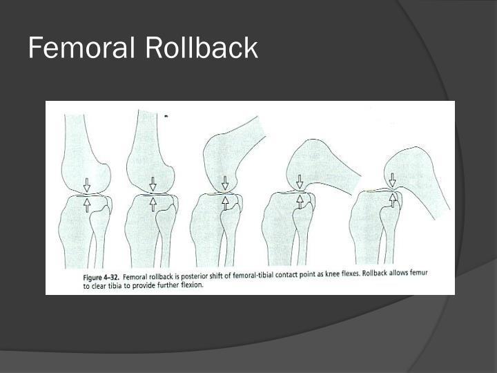 Femoral Rollback