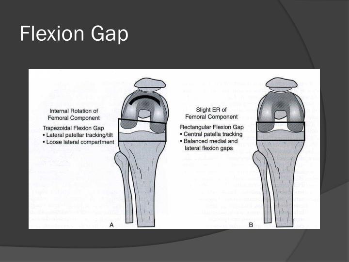 Flexion Gap