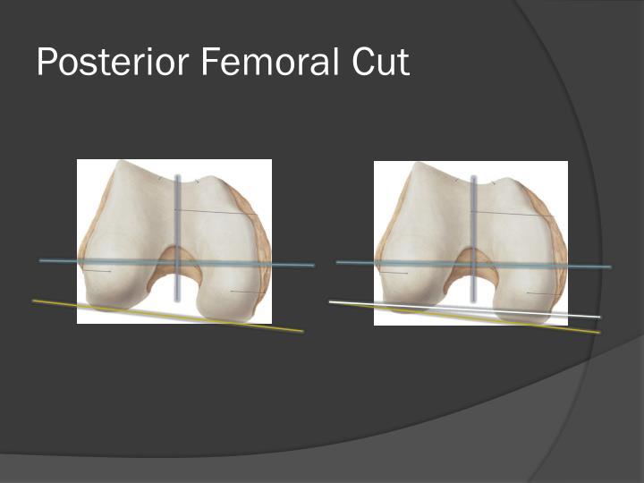 Posterior Femoral Cut