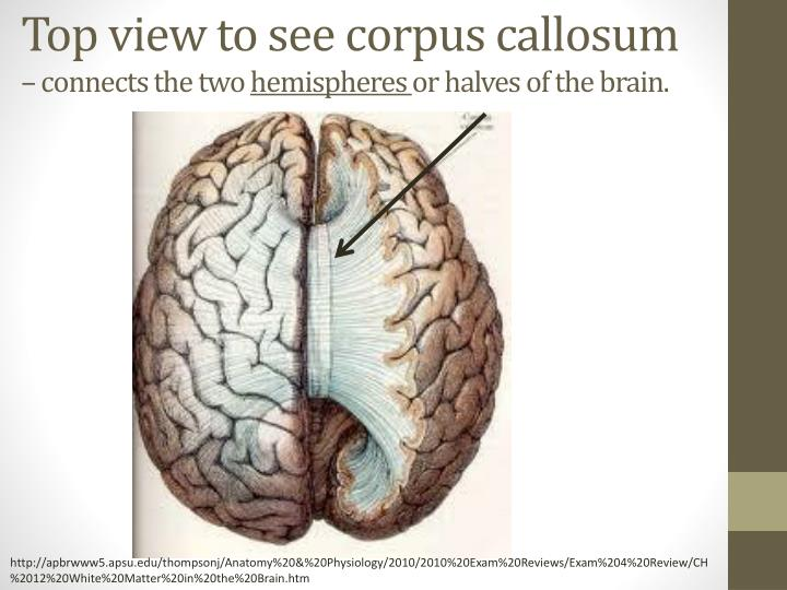 Top view to see corpus callosum