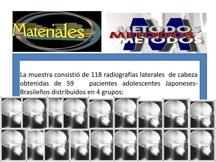 La muestra consistió de 118 radiografías laterales  de cabeza obtenidas de 59   pacientes adolescentes Japoneses-Brasileños