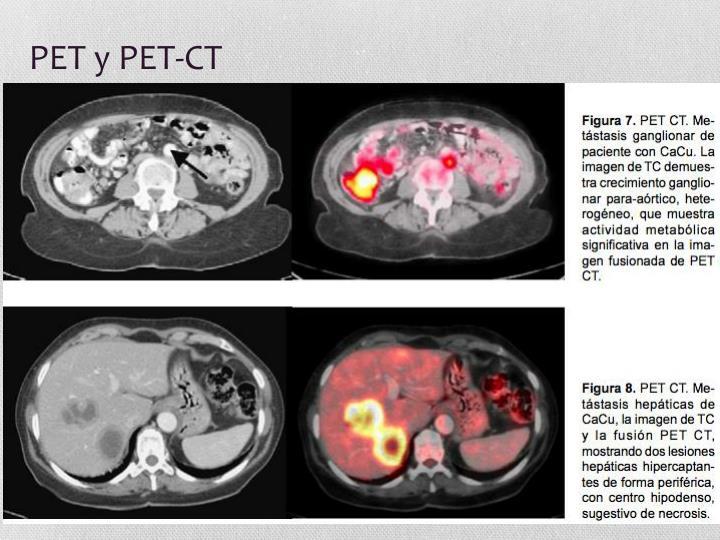 PET y PET-CT