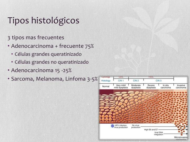 Tipos histológicos