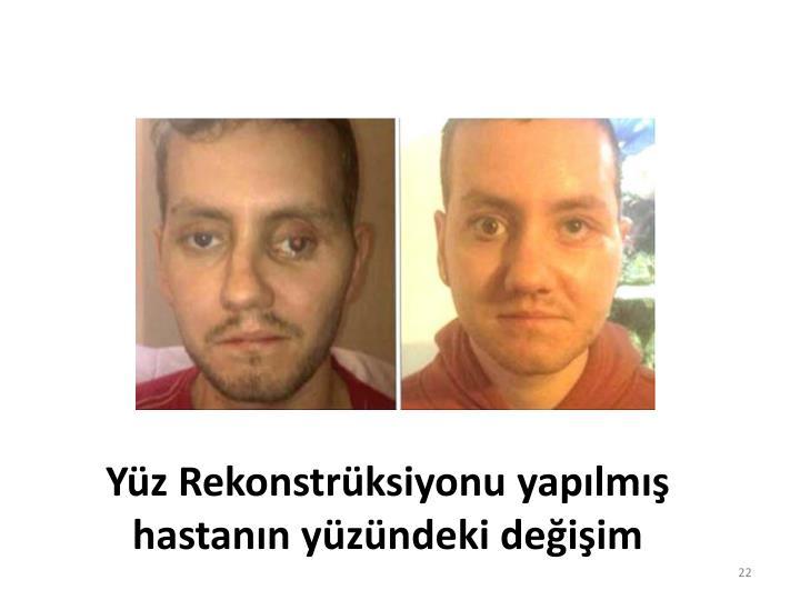 Yüz Rekonstrüksiyonu yapılmış hastanın yüzündeki değişim