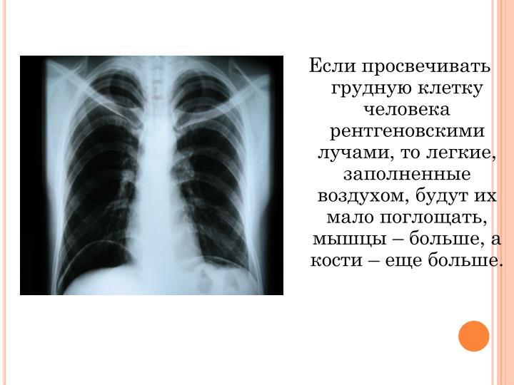 Если просвечивать грудную клетку человека рентгеновскими лучами, то легкие, заполненные воздухом, будут их мало поглощать, мышцы – больше, а кости – еще больше.