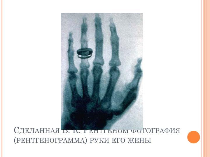 Сделанная В. К. Рентгеном фотография (рентгенограмма) руки его жены