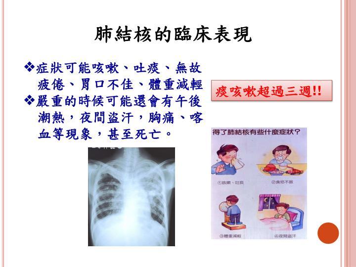 肺結核的臨床表現