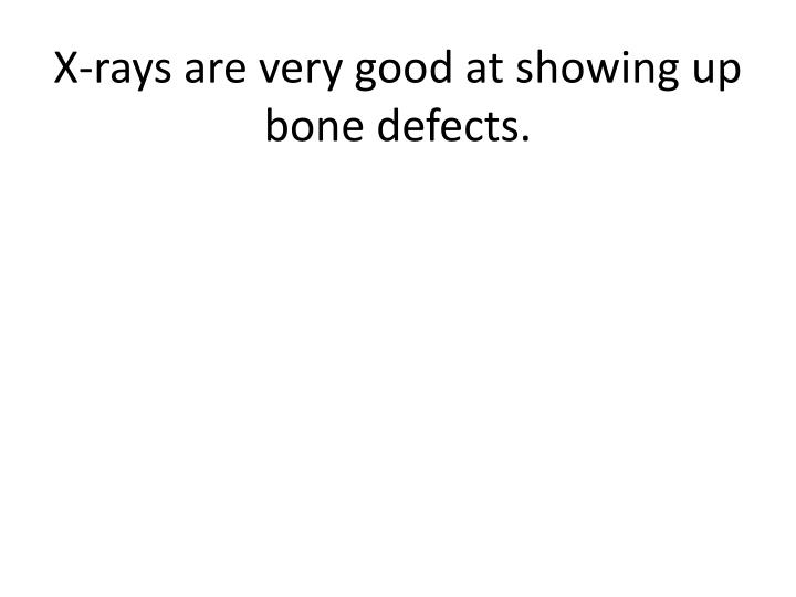 X-rays are very good at showing up bone defects.