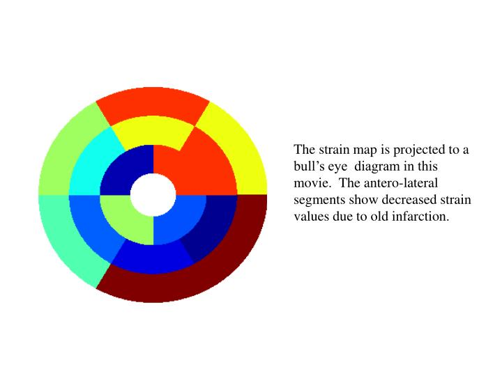 The strain map is projected to a bull's eye  diagram in this movie.  The