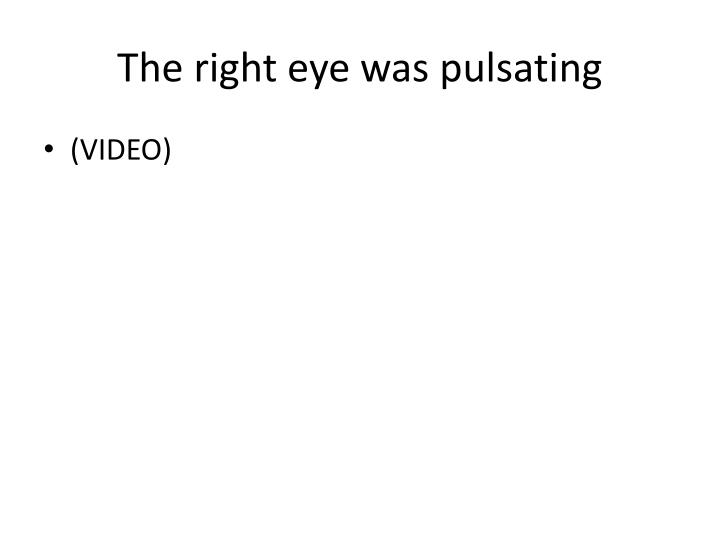 The right eye was pulsating