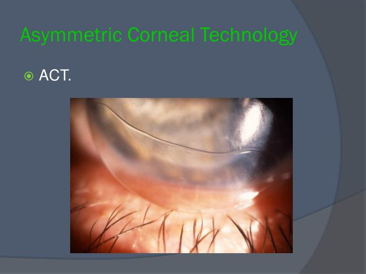 Asymmetric Corneal Technology