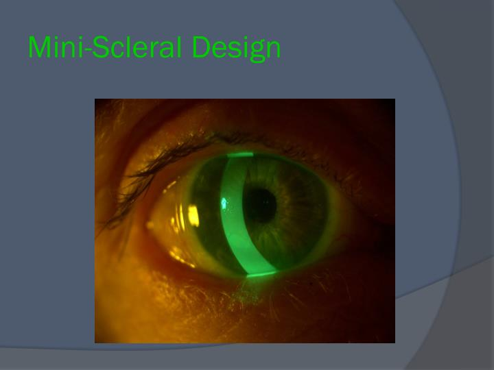Mini-Scleral Design