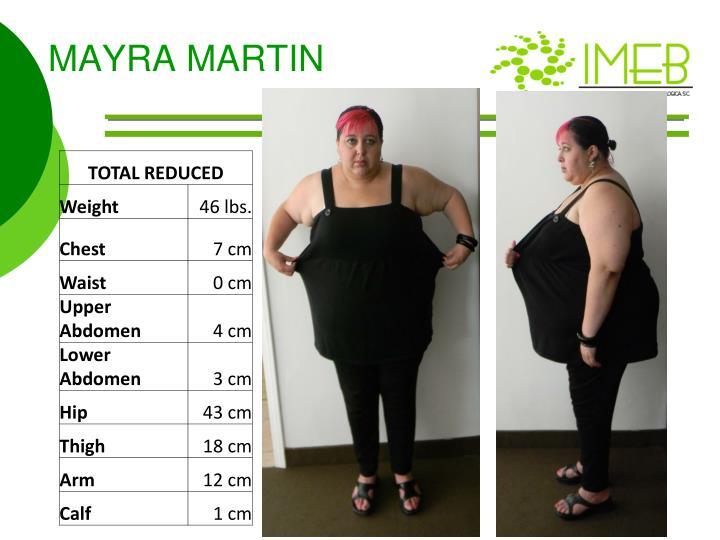 MAYRA MARTIN