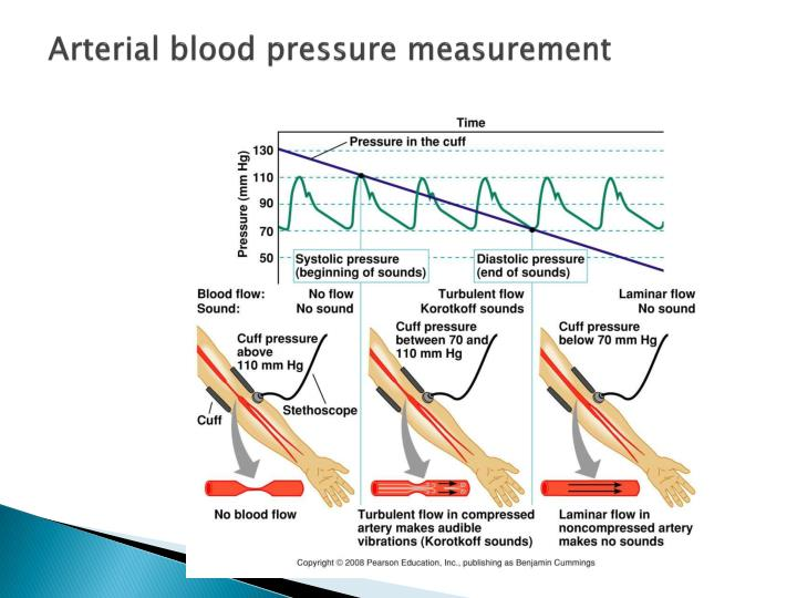 Arterial blood pressure measurement