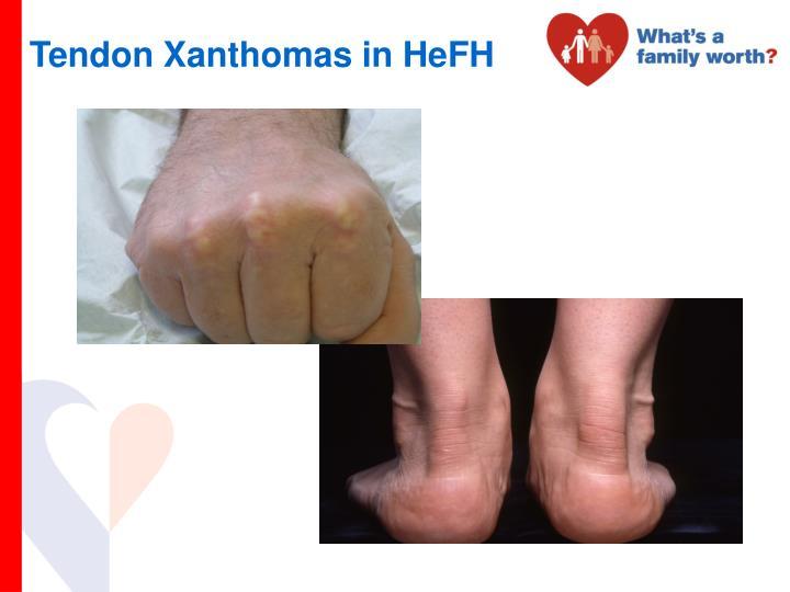 Tendon Xanthomas in HeFH