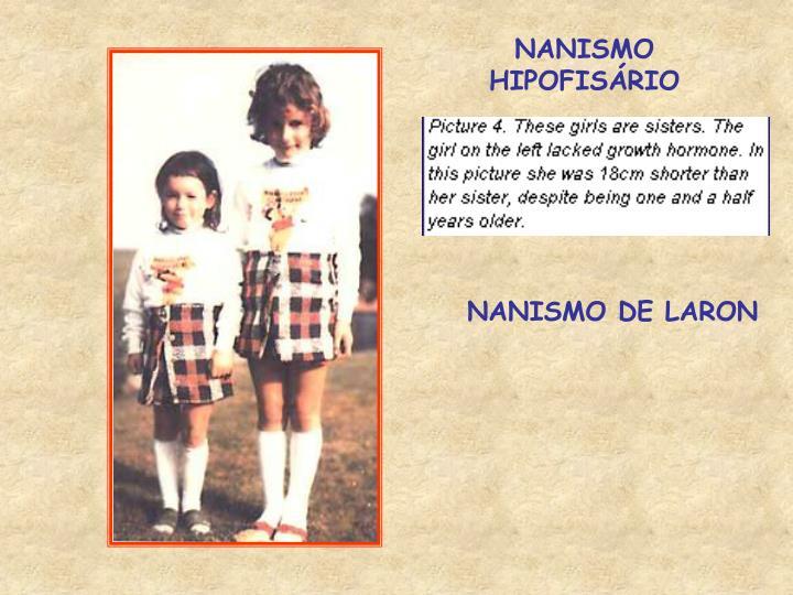 NANISMO HIPOFISÁRIO