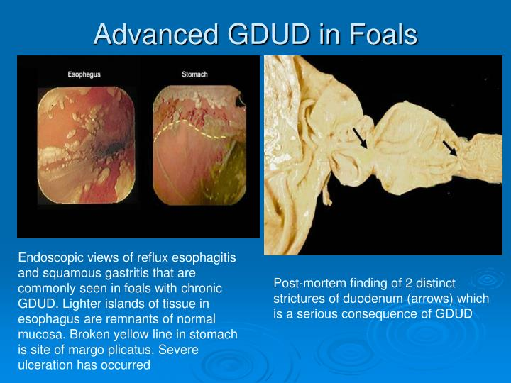 Advanced GDUD in Foals