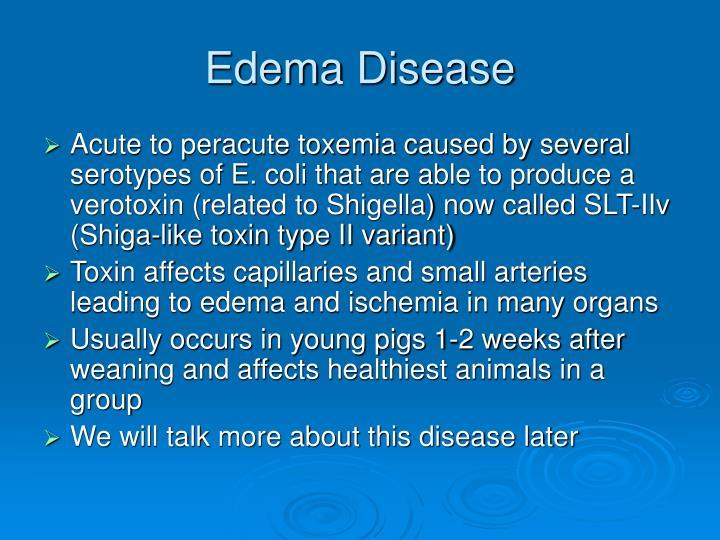 Edema Disease