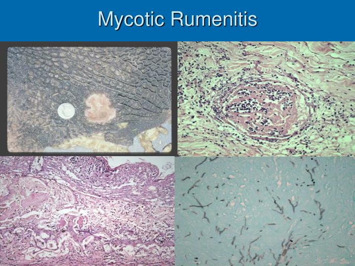 Mycotic Rumenitis
