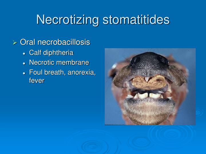 Necrotizing stomatitides