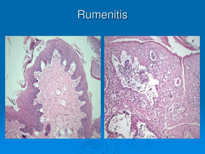 Rumenitis