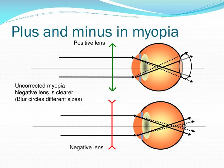 Plus and minus in myopia