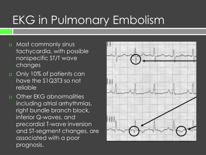 EKG in Pulmonary Embolism