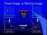 fixed image moving image