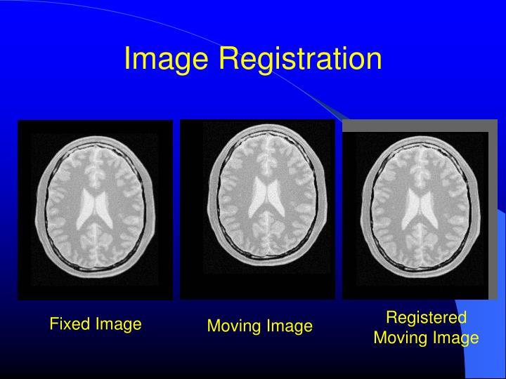 Registered Moving Image