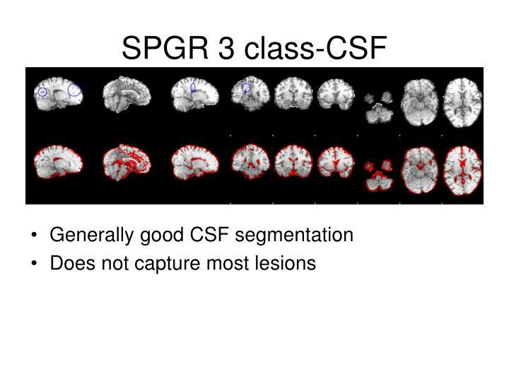 SPGR 3 class-CSF