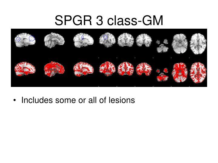 SPGR 3 class-GM