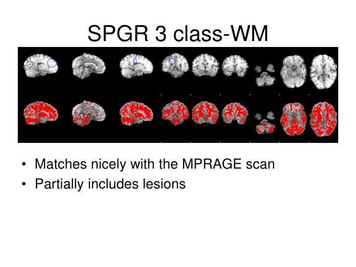 SPGR 3 class-WM